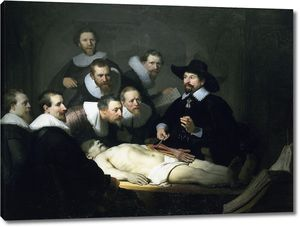 Рембрандт. Урок анатомии доктора Николаса Тюльпа